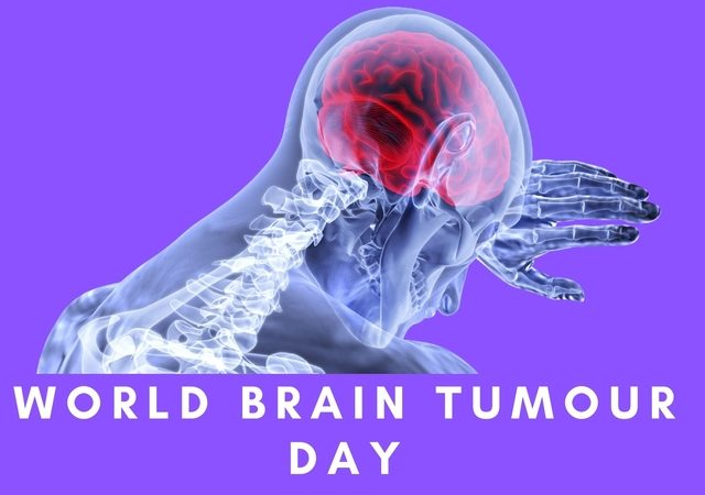 World Brain Tumour Day 2020: World Brain Tumour Awareness Day on 8 June